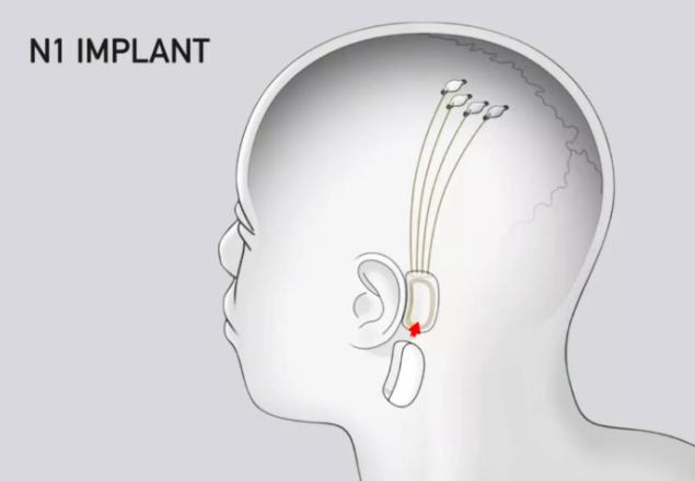 Neuralink N1