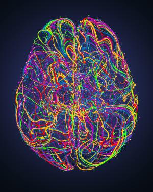 gcs miracle brain