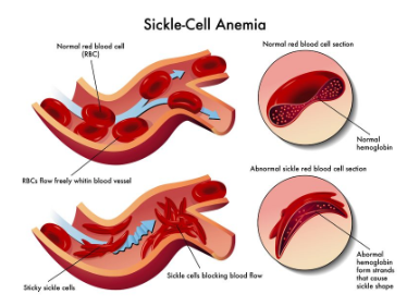 sickle-cell image